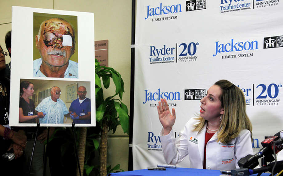 EDS NOTE: GRAPHIC CONTENT - Dr. Wrood Kassira, right, a University of Miami/Jackson Memorial Hospital plastic surgeon, gestures as she speaks on the condition of Ronald Poppo, pictured at left, during a news conference, Tuesday, June 12, 2012 in Miami. Poppo was a homeless man whose face was mostly chewed off in a bizarre attack along a busy Miami street May 26. (AP Photo/Wilfredo Lee) / AP