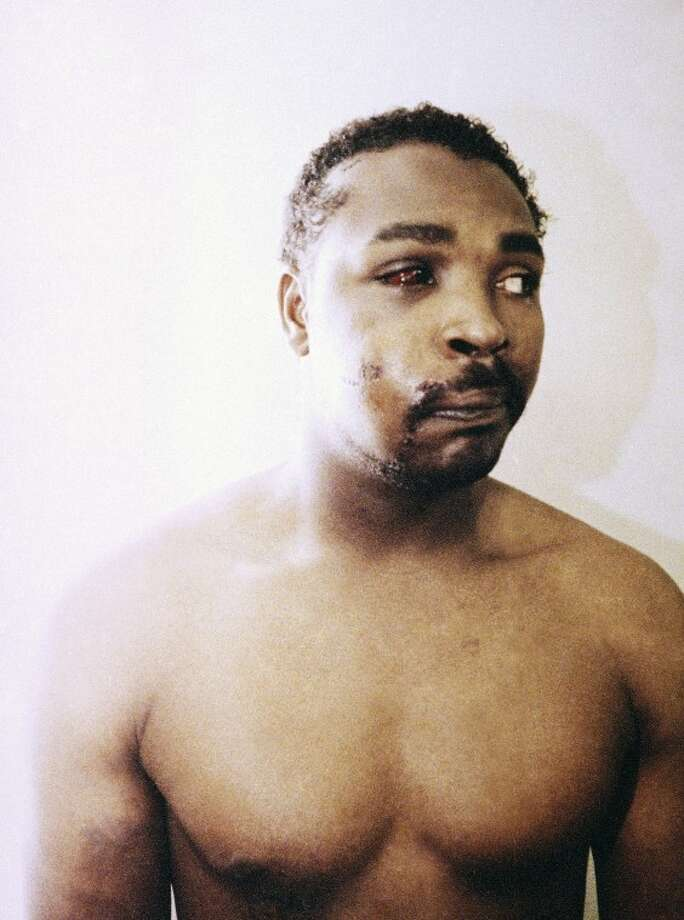 FILE - This file photo of Rodney King was taken three days after his videotaped beating in Los Angeles on March 6, 1991. King, the black motorist whose 1991 videotaped beating by Los Angeles police officers was the touchstone for one of the most destructive race riots in the nation's history, has died, his publicist said Sunday, June 17, 2012. He was 47. (AP Photo/Pool, File)