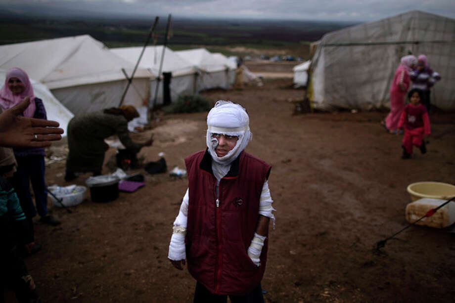 FILE - Abdullah Ahmed, 10, who suffered burns in a Syrian government airstrike and fled his home with his family, stands outside their tent at a camp for displaced Syrians in the village of Atmeh, Syria, Dec. 11, 2012. This image was one in a series of 20 by AP photographers that won the 2013 Pulitzer Prize in Breaking News Photography. (AP Photo/Muhammed Muheisen, File) / AP