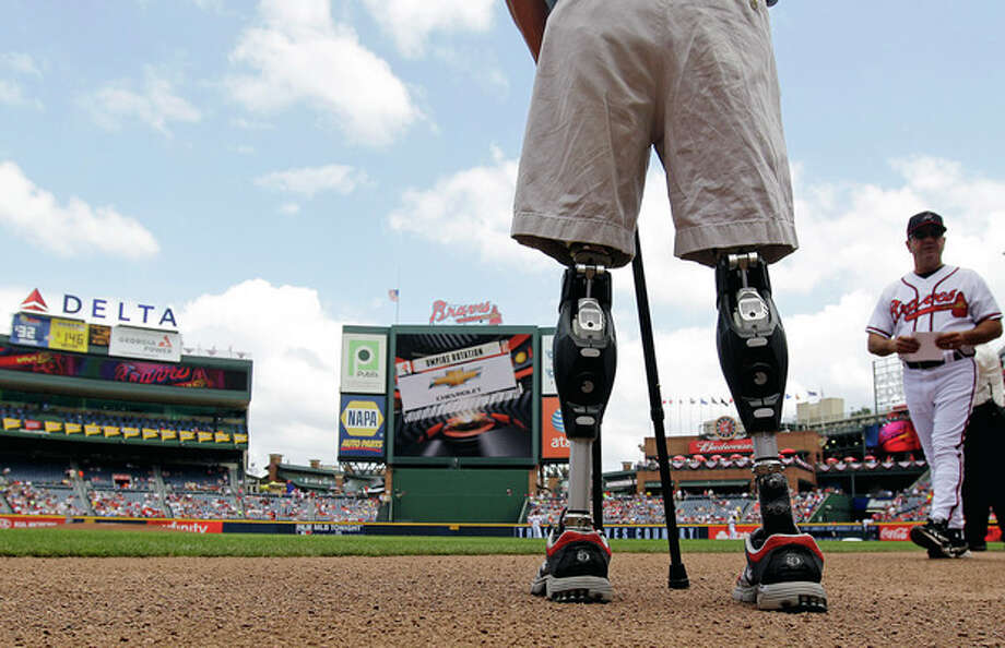 FILE - In this Monday, May 28, 2012 file photo, U.S. Army Capt. Dan Berschinski, foreground, uses prosthetic legs to stand on the field before a baseball game between the St. Louis Cardinals and Atlanta Braves in Atlanta. Berschinski lost both legs to an IED blast while serving in Afghanistan in 2009. Nearly 2,000 American troops have lost a leg, arm, foot or hand in Iraq or Afghanistan, and their sacrifices have led to advances in the immediate and long-term care of survivors, as well in the quality of prosthetics that are now so good that surgeons often chose them over trying to save a badly mangled leg. (AP Photo/David Goldman) / AP