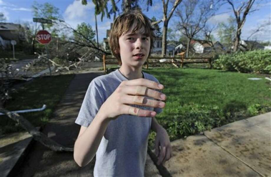 Lucas Wickander, 13, shows off the skinned knuckles he received after diving under a porch to escape a tornado that struck northern Minneapolis Sunday, May 22, 2011, causing extensive property damage, killing at least one person and injuring at least 18 others. (AP Photo/Craig Lassig)