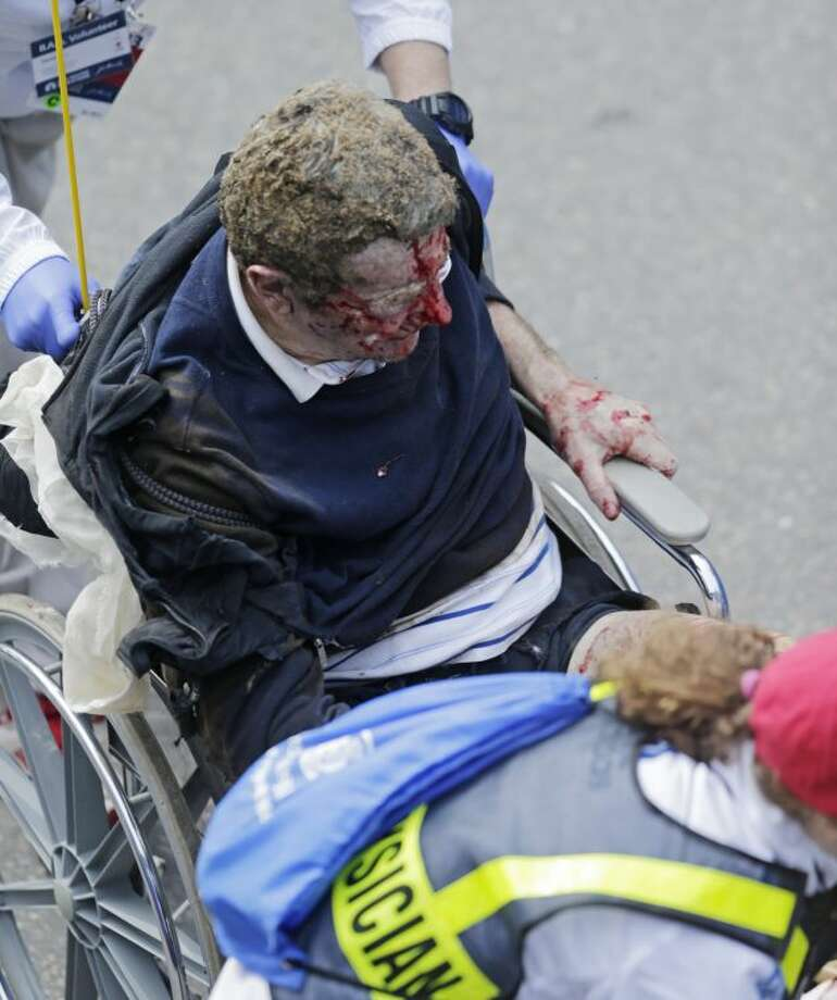 Medical workers aid an injured man at the finish line of the 2013 Boston Marathon following an explosion there Monday, April 15, 2013 in Boston. Two explosions shattered the euphoria at the finish line on Monday, sending authorities out on the course to carry off the injured while the stragglers were rerouted away from the smoking site of the blasts. (AP Photo/Charles Krupa)