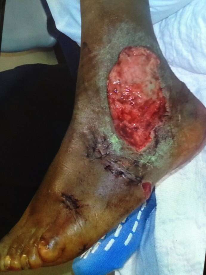 Dog bite victim Archie Hilliard shows his ankle, which was chewed to the bone by a pit bull in Norwalk.