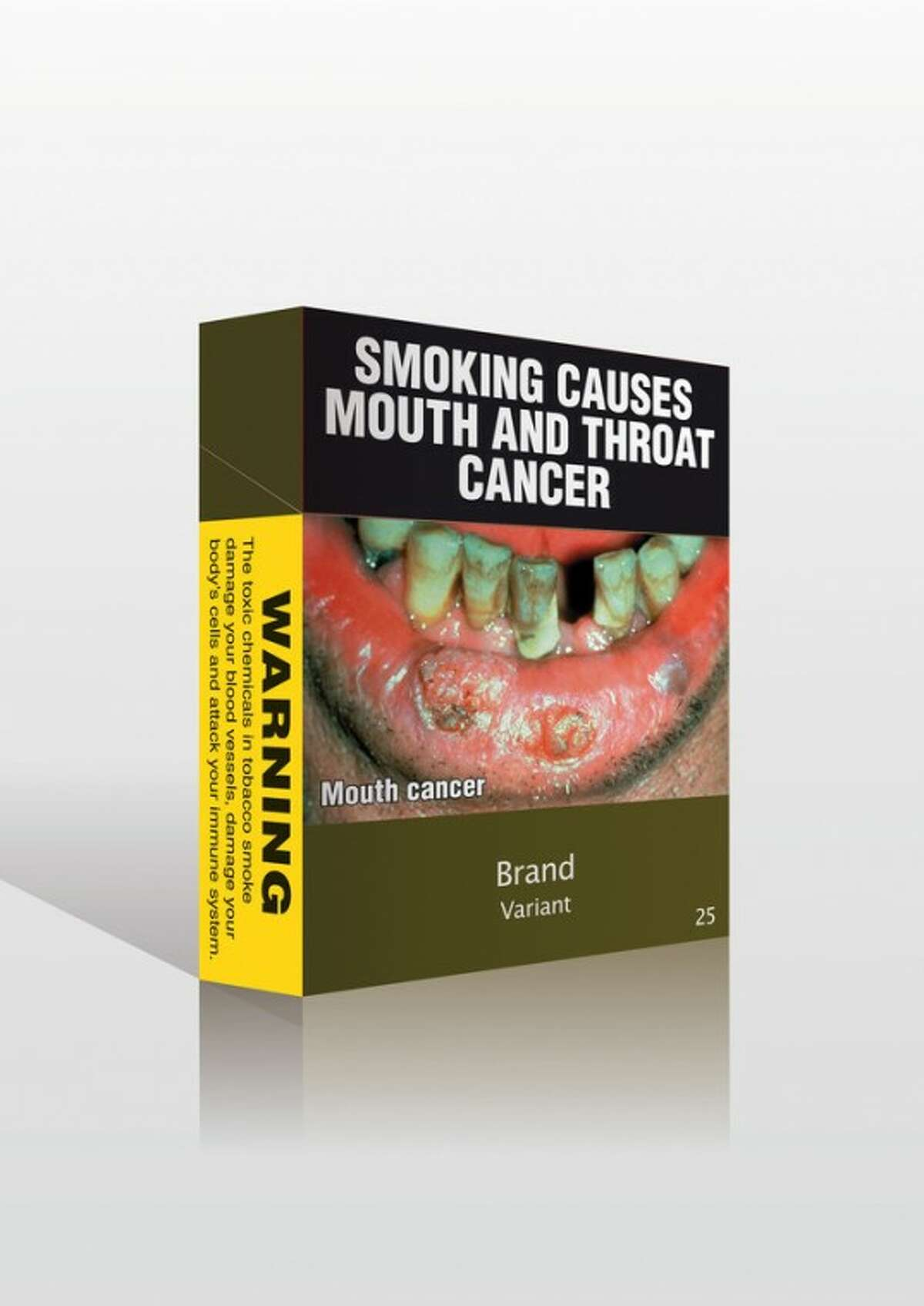 FILE - In this undated image provided by the Minister for Health and Ageing is proposed cigarette packaging stripped of all logos and replaced with graphic images that tobacco companies in Australia will be forced to use. Australia's highest court upheld the world's toughest law on cigarette promotion on Wednesday, Aug. 15, 2012, despite protests from tobacco companies that argued the value of their trademarks will be destroyed under new rules that will strip all logos from cigarette packs. (AP Photo/Minister for Health and Ageing, File) EDITORIAL USE ONLY