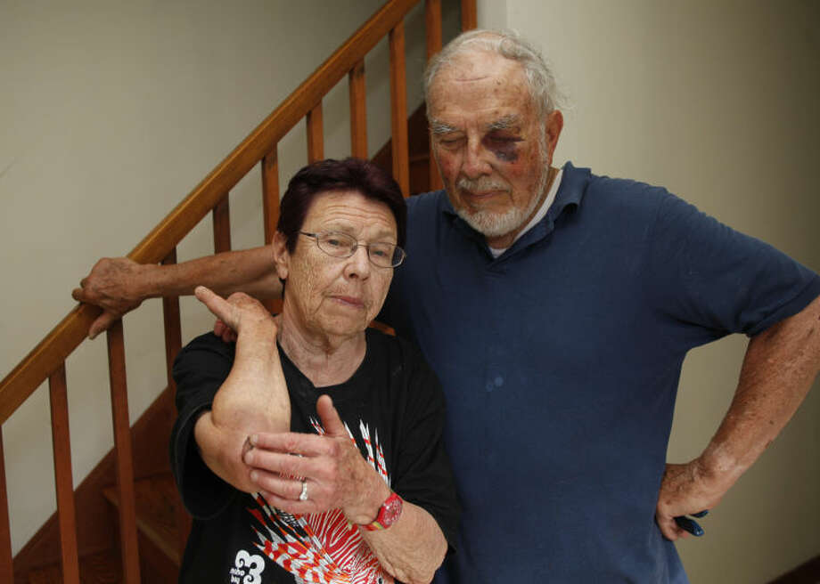 Regina and Bill Krummel display their wounds at their home in Norwalk Wednesday afternoon. Hour Photo / Danielle Calloway