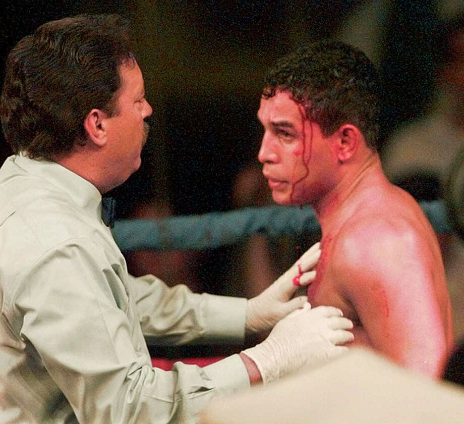 "FILE - In this Jan. 16, 1996 file photo, referee Jorge Alfonso, left, looks over a cut on the forehead of IBC Welterweight boxing champ Hector ""Macho"" Camacho during the second round of his title bout with Sal Lopez from New Jersey, in Ft. Lauderdale, Fla. Camacho, a boxer known for skill and flamboyance in the ring, as well as for a messy personal life and run-ins with the police, has died, Saturday, Nov. 24, 2012, after being taken off life support. He was 50. (AP Photo/Hans Deryk, File) / AP"