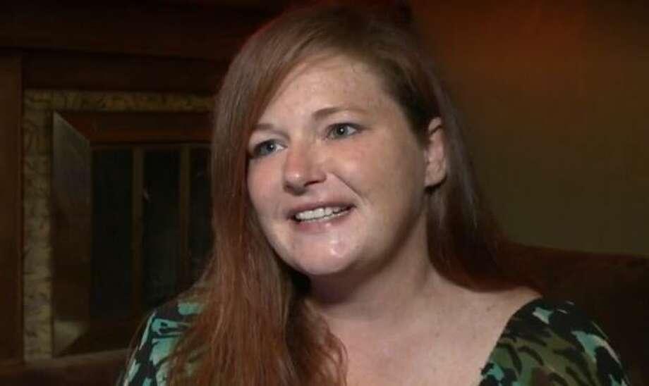 Texas Woman Suffers Horrific Third Degree Burns From Laser Hair