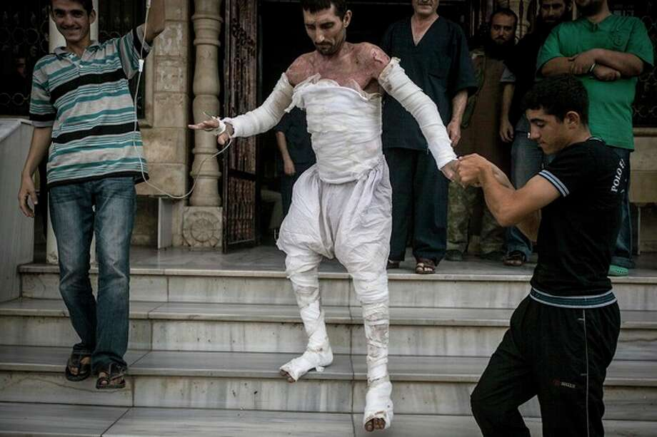 FOR USE AS DESIRED, YEAR END PHOTOS - FILE - A Syrian man with more than half his body burnt from an air strike leaves a field hospital to go back home at a village turned into a battlefield with government forces in Idlib province, northern Syria, Sept. 22, 2013. (AP Photo, File) / AP