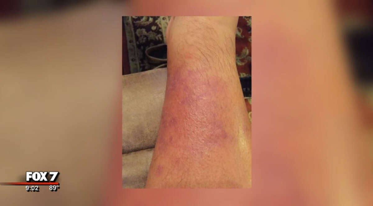 A Central Texas man's trip to Port Aransas turned into a fight to save a limb, according to a report. See what this infection turned into on the next slide.