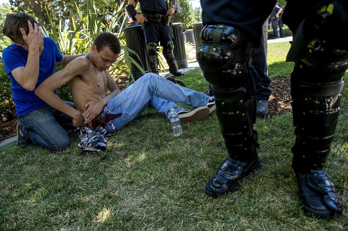 Sean Moore, 23, of Sacramento waits for medics with a friends after being stabbed by protesters at the State Capitol in Sacramento, Calif., on Sunday, June 26, 2016. Sacramento Fire Department spokesman Chris Harvey says a rally by KKK and other right-wing extremists groups turned violent Sunday when they were met by counterprotesters. (Renee C. Byer/The Sacramento Bee via AP) MAGS OUT; LOCAL TELEVISION OUT (KCRA3, KXTV10, KOVR13, KUVS19, KMAZ31, KTXL40); MANDATORY CREDIT