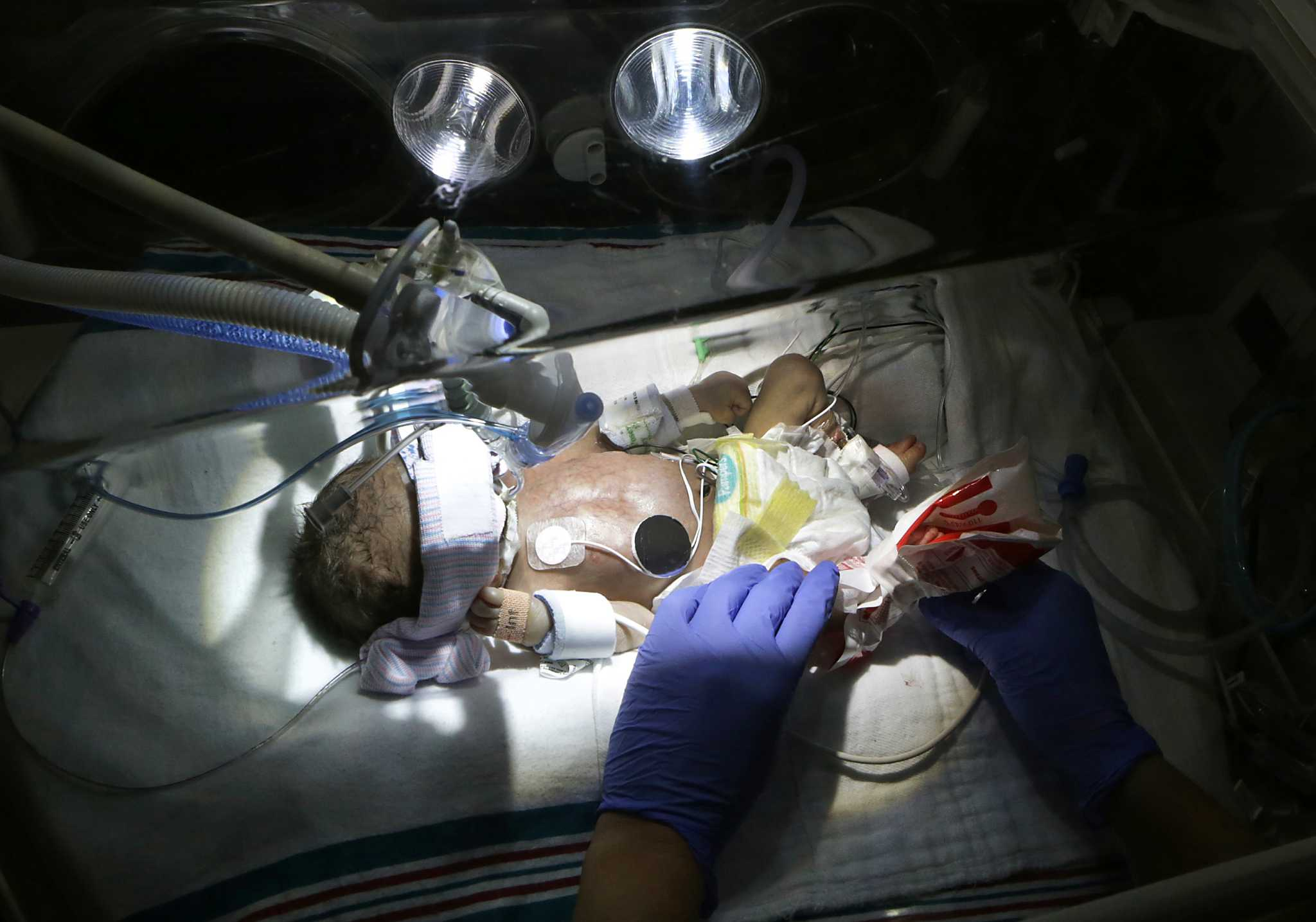 What is causing the deaths of so many infants in bexar county what is causing the deaths of so many infants in bexar county san antonio express news aiddatafo Gallery