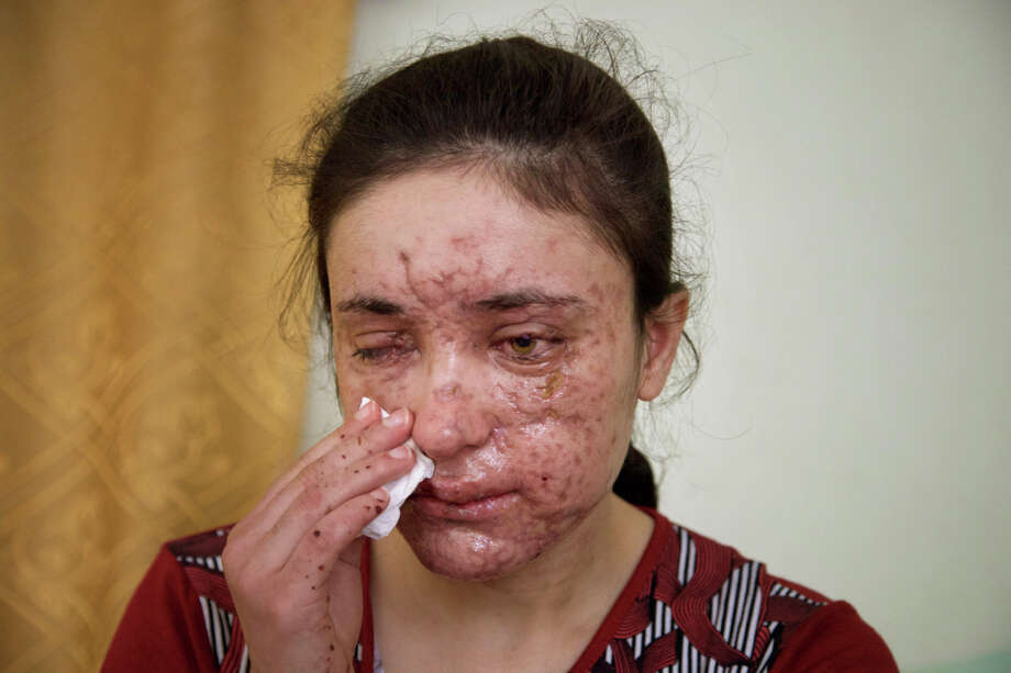 Lamiya Aji Bashar, an 18-year-old Yazidi girl who escaped her Islamic State group enslavers, talks to The Associated Press in northern Iraq in this May 5, 2016 photo. She described how she was abducted along with her sisters and brothers when IS overran her village in 2014 and was passed around from militant to militant, trying to escape many times. Finally she succeeded in March, but only after a mine exploded, killing two girls fleeing with her and leaving Bashar's face scarred and blinding her in one eye. (AP Photo/Balint Szlanko) ORG XMIT: XMA501 Photo: Balint Szlanko / Copyright 2016 The Associated Press. All rights reserved. This m