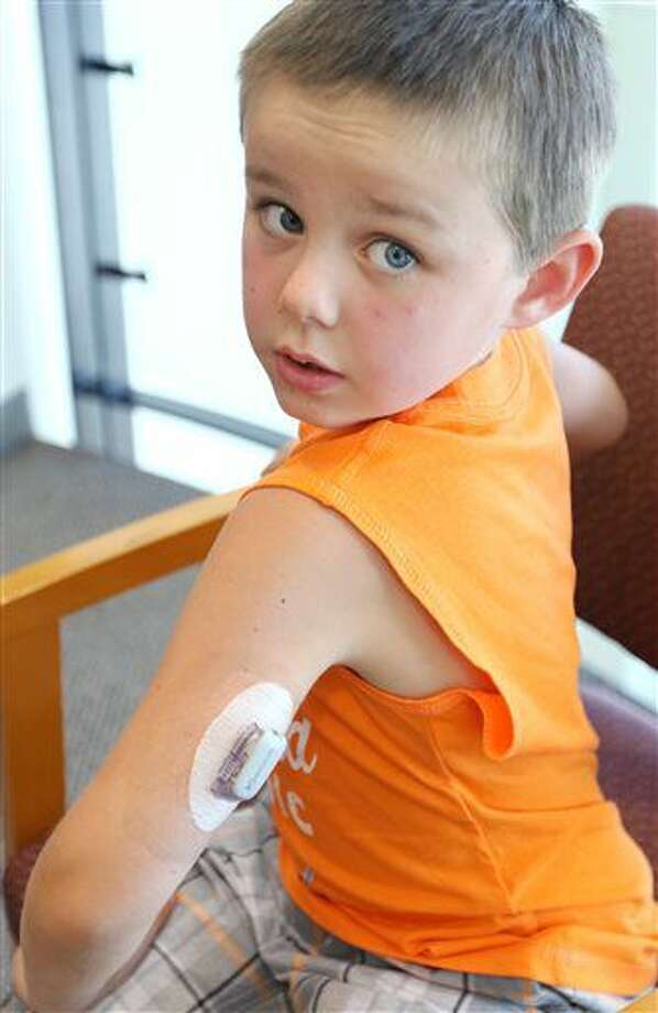 ADVANCE FOR SATURDAY JULY 9 AND THEREAFTER - In a June 30, 2016 photo, Oliver Ellis, 6, of Roseburg, Ore., displays the blood glucose monitor affixed to his arm. For Oliver and his parents, Ben and Nichole Ellis, managing diabetes involves regular monitoring of his blood sugar. If it's too low, he swallows something sweet. If it's too high, he gets insulin from a small pod attached to his leg. Another pod on his arm triggers an alert if his blood sugar drops below 80. (Michael Sullivan/The News-Review via AP) Photo: Michael Sullivan