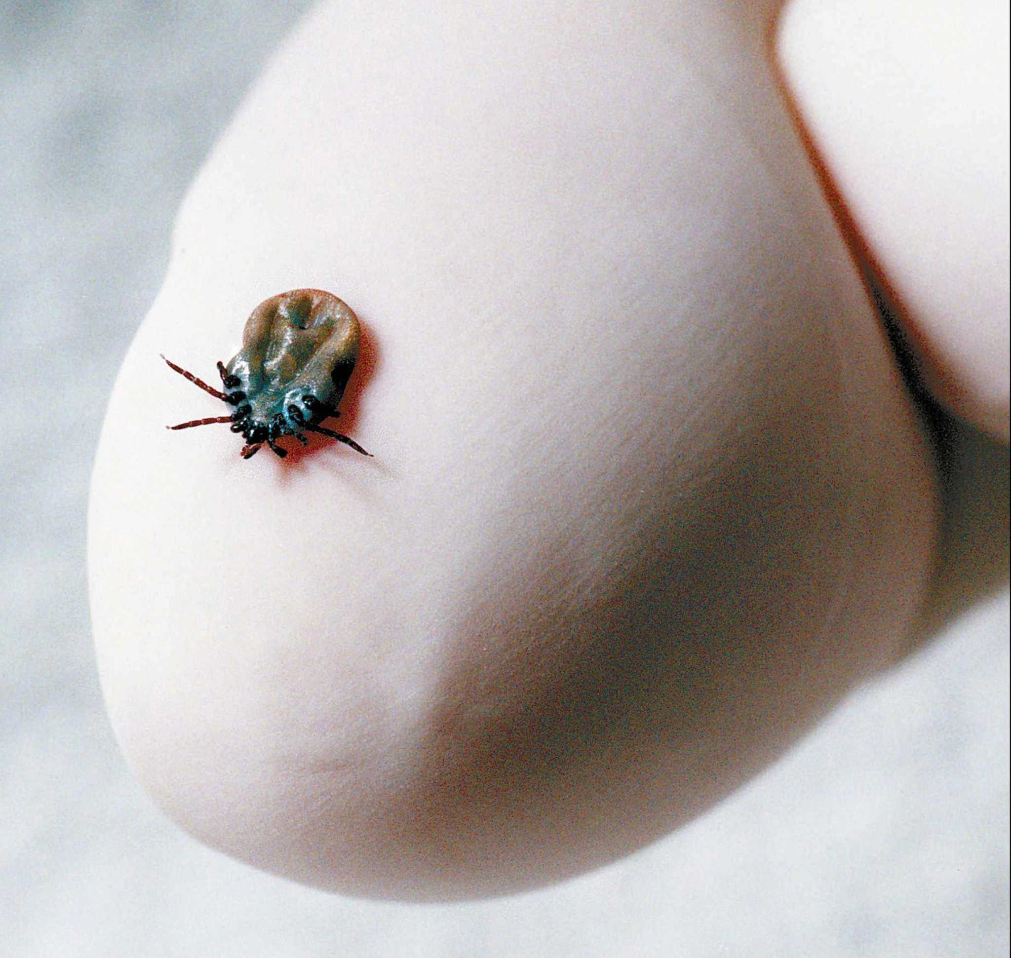Greenwich residents urged to watch out for ticks - GreenwichTime