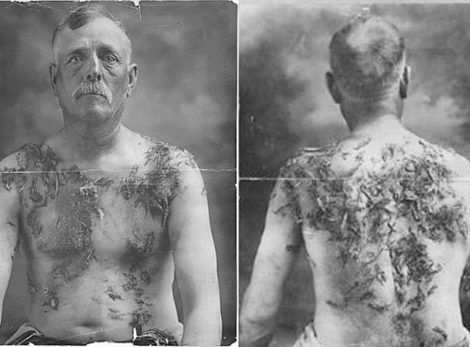 Like the man in these pictures, Father Joseph Keller, a priest at Slaton, was subjected to having tar and feathers poured on him in 1920. Photo: Photo Courtesy Of Dr. Kevin Sweeney