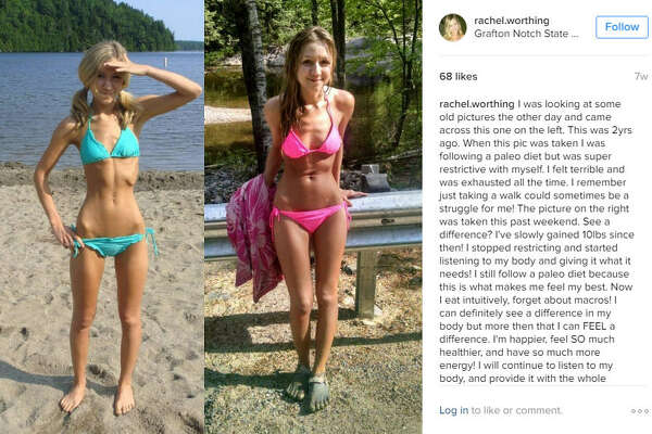 Rachel Worthing, a 25-year-old from Oxford, Maine, was diagnosed anorexia at the age of 12, but after going through the struggle of beginning the recovery process, she is helping other young women around the world by sharing her story. Weight doesn't necessarily determine how healthy you are. Take a look through the gallery to see 10 way to know you're healthy that have nothing to do with weight.  Photo: @lovemymiddle Instagram