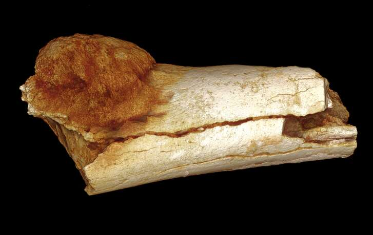 A 1.7 million year-old fossil with a cancerous growth. This disproves notions that cancer is a recent phenomenon. Take a look though the gallery to see things that could potentially give you cancer according to the WHO.   Photo: Patrick Randolph-Quinney, University of Central Lancashire