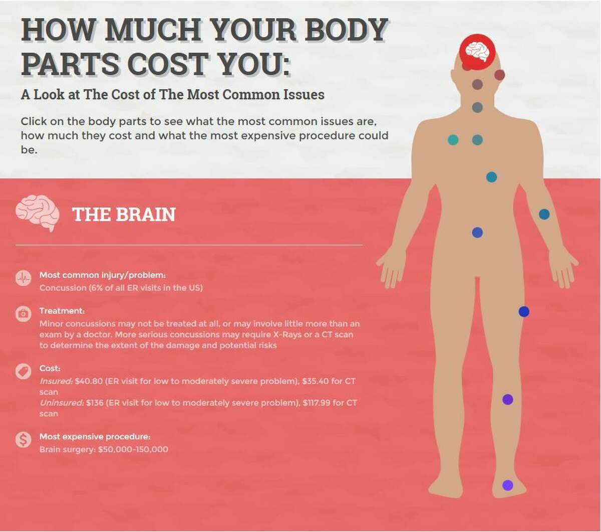 The Brain Most expensive procedure: Brain surgery: $50,000-150,000