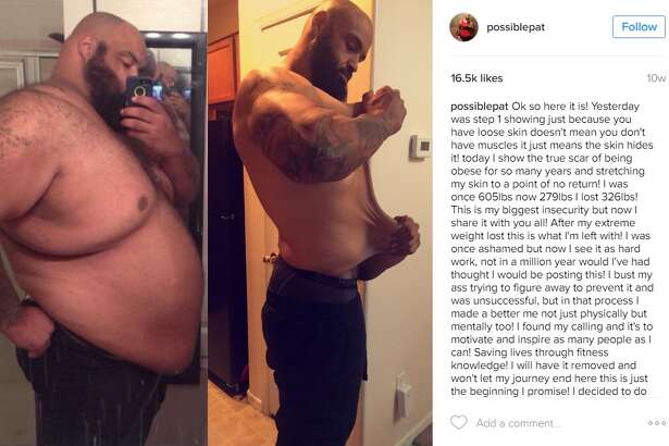 Pat Brocco, an Arizona man who once weighed more than 600 pounds, has been documenting his weight loss journey in which he shed most of the pounds by walking to Walmart daily for meals.