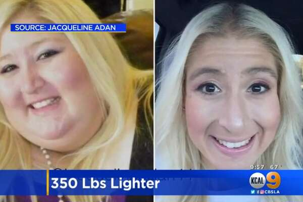 Jacqueline Adan, who previously weighed more than 500 pounds, used exercise and dieting to shed 350 pounds after getting stuck in a turnstile at an amusement park.