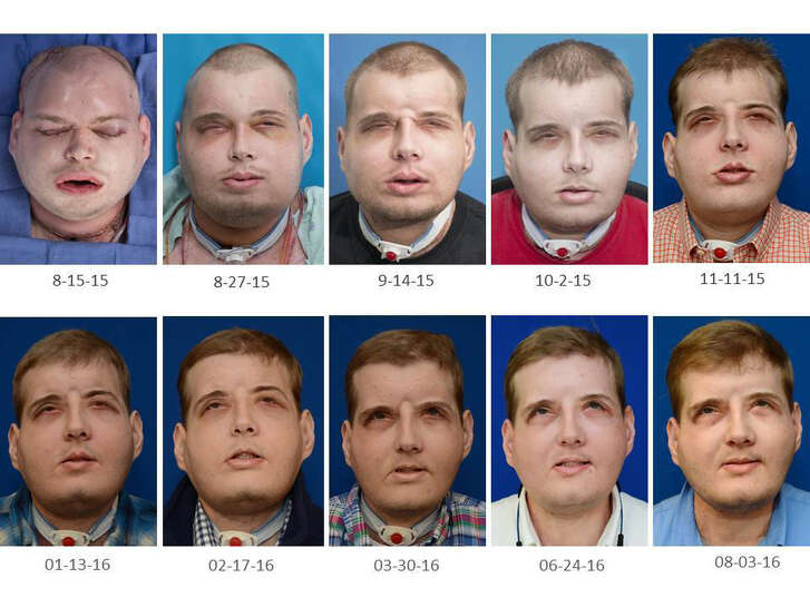 Mississippi volunteer firefighter Patrick Hardison underwent the world's most extensive face transplant one year ago.