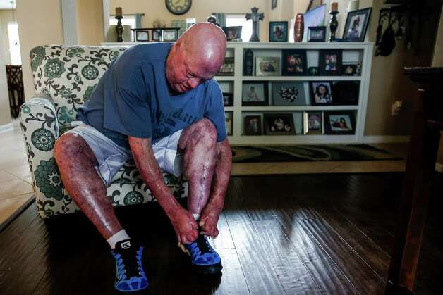 Mike Smith, who was badly burned in an explosion at Air Liquide in 2013, attempts to tie his shoes Tuesday, May 10, 2016 in Pearland. After his burns healed, skin grew and fused between his fingers, majorly limiting their mobility. Photo: Michael Ciaglo, Houston Chronicle / © 2016  Houston Chronicle