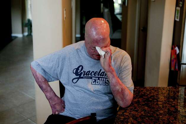 Mike Smith, who was severally injured in an explosion at Air Liquid in 2013, wipes away tears at his home Friday, June 3, 2016 in Pearland. Because of his extensive burns, Smith has a difficult time controlling some things like his tear ducks. Photo: Michael Ciaglo, Houston Chronicle / © 2016  Houston Chronicle