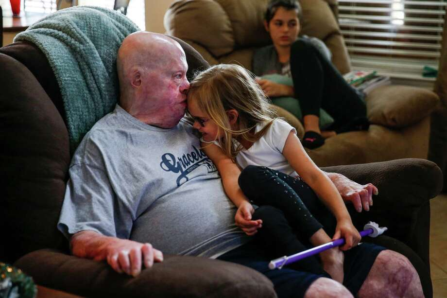 Mike Smith cuddles with daughter Payton at home in Pearland. He was burned over nearly 80 percent of his body in 2013. Photo: Michael Ciaglo, Staff / © 2016  Houston Chronicle