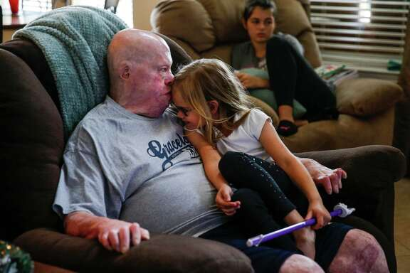 Mike Smith cuddles with daughter Payton at home in Pearland. He was burned over nearly 80 percent of his body in 2013.