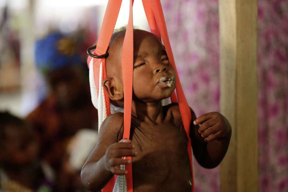 A malnourished child is weigh on a scale at a clinic run by Doctors Without Borders in Maiduguri Nigeria, Monday Aug. 29, 2016. Children who escaped Boko Haram's Islamic insurgency now are dying of starvation in refugee camps in northeastern Nigeria's largest city as the government investigates the theft of food aid by officials. ( AP Photo/Sunday Alamba) Photo: Sunday Alamba, STF / Copyright 2016 The Associated Press. All rights reserved.