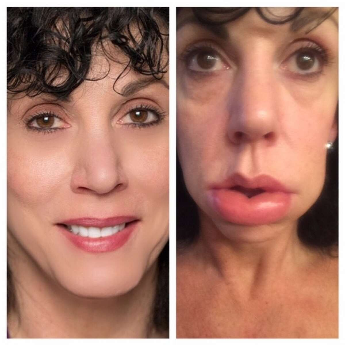 Linda Presler when she's well, left, and having a swelling attack, right. (Provided)