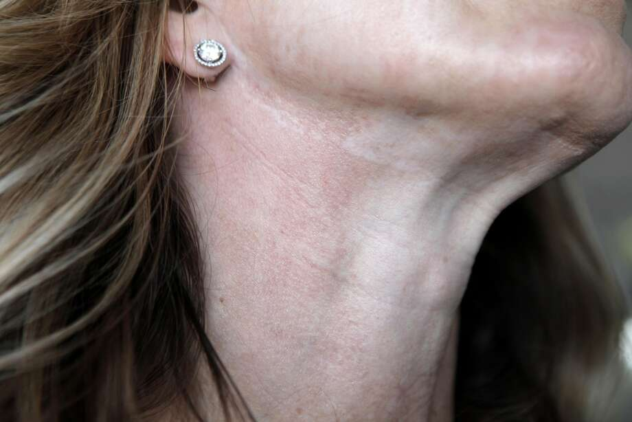 Deidra Carson who runs a shop in San Anselmo was left with lasting scars and discoloration after a laser peel. Her cometic surgeon sued after she left a scathing review on Yelp. Photo: Gabriella Angotti-Jones, The Chronicle