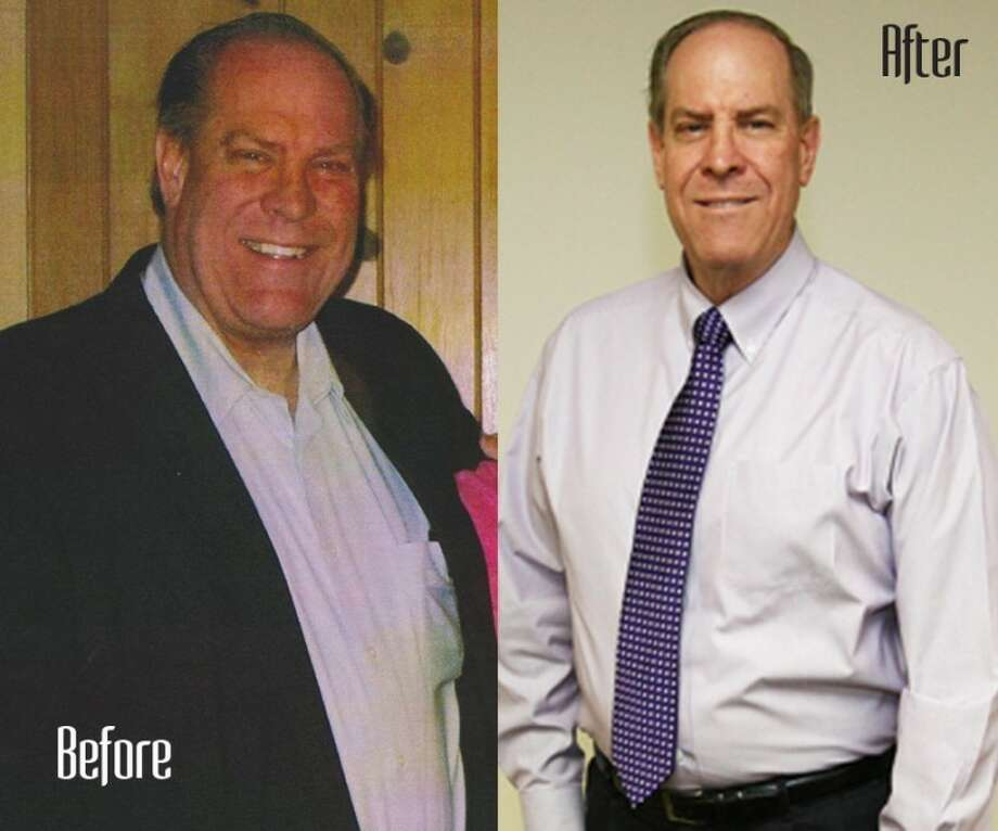 "Chris Loomis before and after his 77 pound weight loss. Loomis won the ""A New Year, A New You"" contest hosted by Fit for Life Montgomery County."