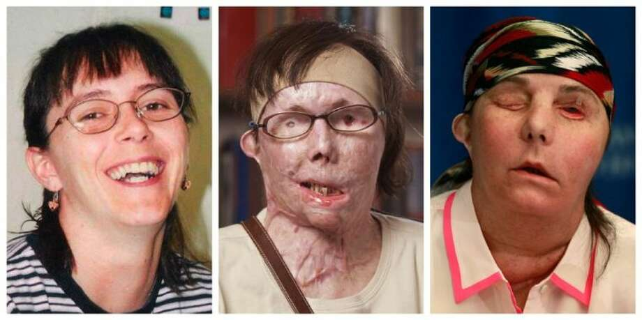 This photo combination shows Carmen Blandin Tarleton, who suffered chemical burns over 80 percent of her body when her estranged husband doused her with lye in June 2007. The undated photo at left, provided by the Blandin family, shows Tarleton before the attack. The center photo, provided by Brigham and Women's Hospital in Boston, shows Tarleton in July 2011. The photo at right shows Tarleton on Wednesday after her successful face transplant in February. Photo: HONS