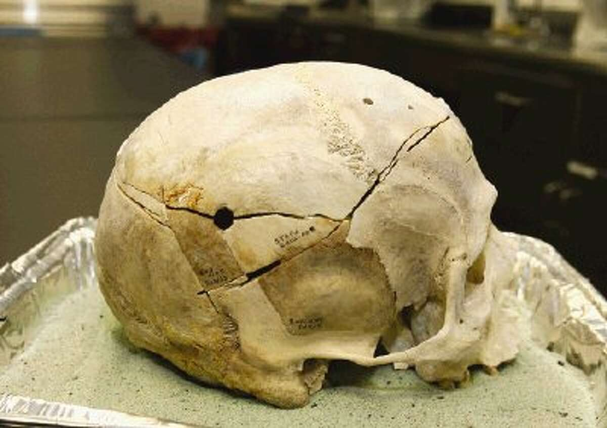A bullet hole in the skull of a victim reveals the cause of death.