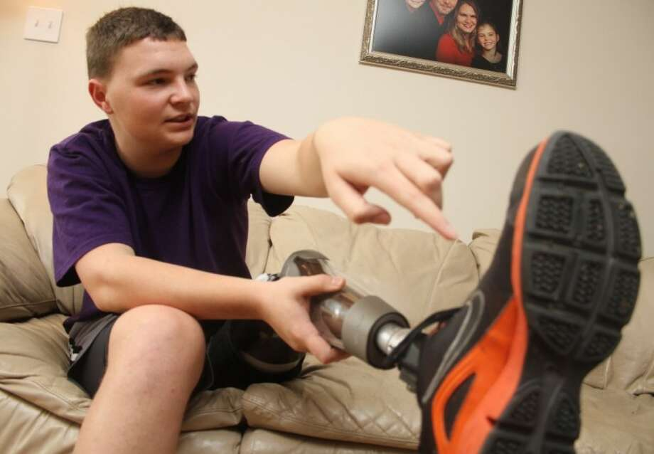 Trey Jackson, 17, describes the features of his prosthetic leg. Diagnosed with cancer in the fall of 2010, Jackson underwent surgery to amputate his leg three inches above the knee in January of 2011, shortly after his 16th birthday. After extensive treatment, he was declared cancer-free in July and recently passed the 6-month marker with flying colors. Photo: JASON FOCHTMAN
