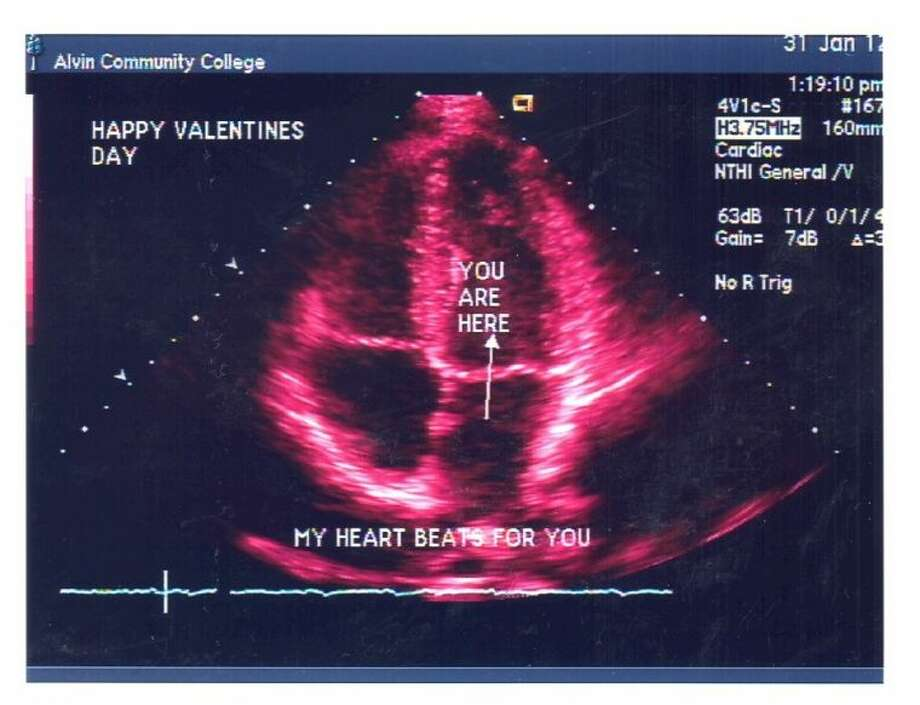 Example of heart scans offered at ACC until February 13.