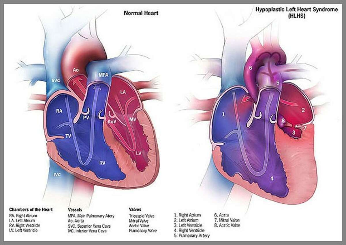 Texas Children's now treating hypoplastic left heart syndrome abnormality in utero