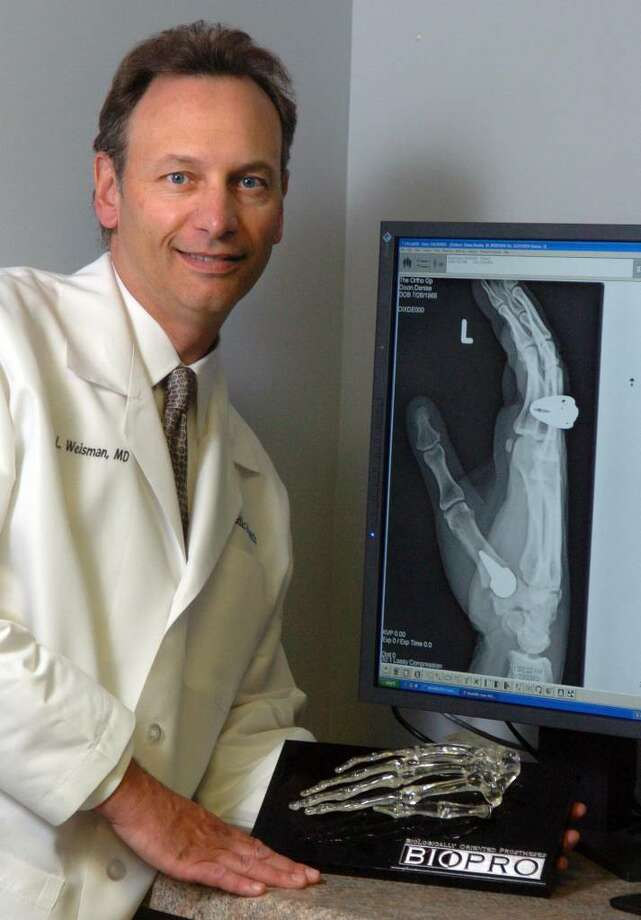 Dr. Tedd Weisman, chief of orthopedics at Milford Hospital, is the only surgeon in the state to perform a joint replacement of the thumb using a metal implant.  The implant can be seen at the base of the thumb on a patient's x-ray. Photo: Autumn Driscoll / Connecticut Post