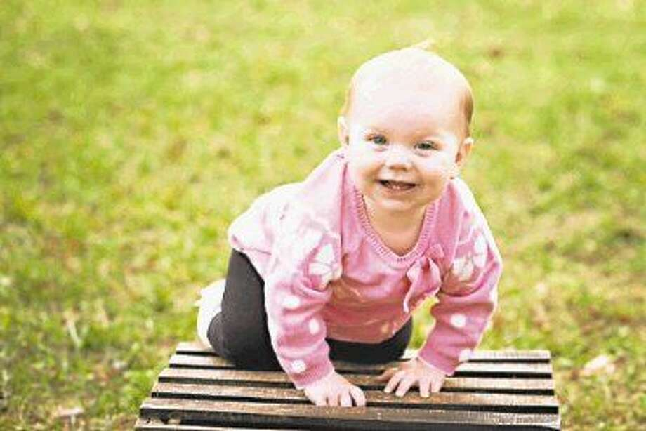 Kendall Ayers, now one year old, was born with cleft palate.