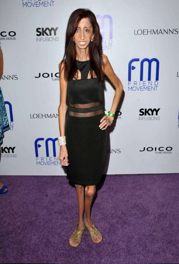 "This July 1, 2013 file photo shows author and motivational speaker Lizzie Velasquez at the Friend Movement Anti-Bullying Benefit Concert at the El Rey Theatre in Los Angeles. Velasquez, who possesses a rare and unknown syndrome that prevents her from gaining weight, is raising funds on Kickstarter through June 1 for an anti-bulling documentary, titled, ""The Lizzie Project."""