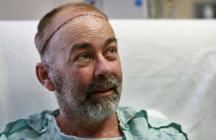 In this photo taken on Wednesday, June 3, 2015, transplant patient Jim Boysen sits in his hospital bed at Houston Methodist Hospital in Houston. Texas doctors say they have done the world's first partial skull and scalp transplant to help Boysen with a large head wound from cancer treatment. MD Anderson Cancer Center and Houston Methodist Hospital doctors announced Thursday, June 4 that they did the operation on May 22 at Houston Methodist. Photo: The Associated Press