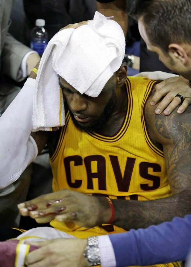 Cleveland Cavaliers forward LeBron James (23) holds a towel to his head Thursday night as he is treated by trainer Steve Spiro, right, after cutting his head when he collided with a TV cameraman during the first half of Game 4 of basketball's NBA Finals. Photo: Paul Sancya