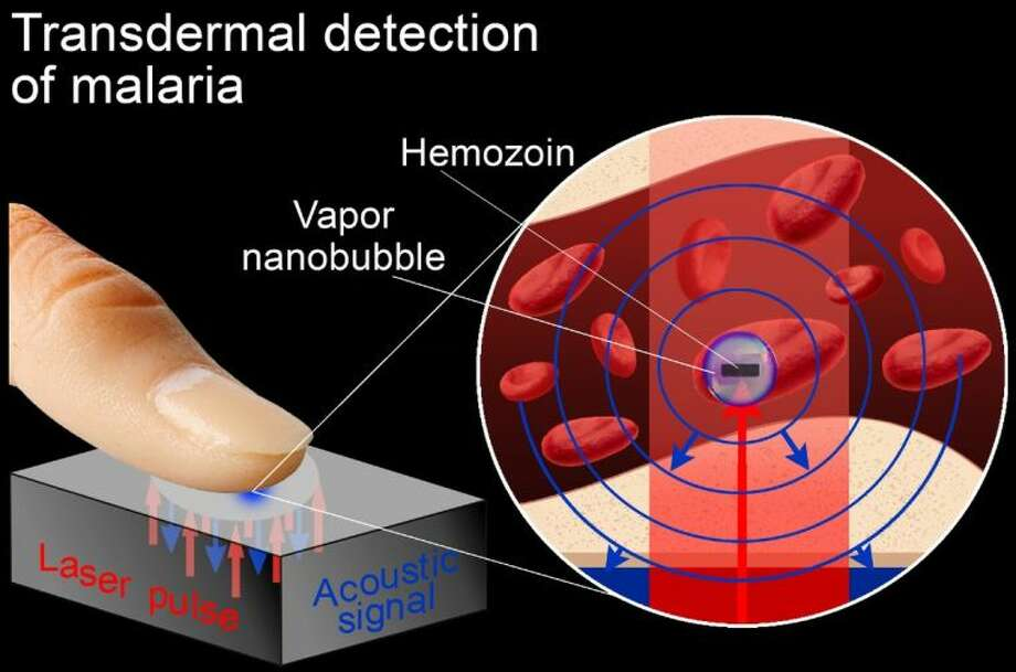 This graphic shows how a laser pulse creates a vapor nanobubble in a malaria-infected cell and is used to noninvasively diagnose malaria rapidly and with high sensitivity.