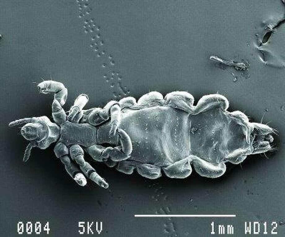 вша под микроскопом картинки