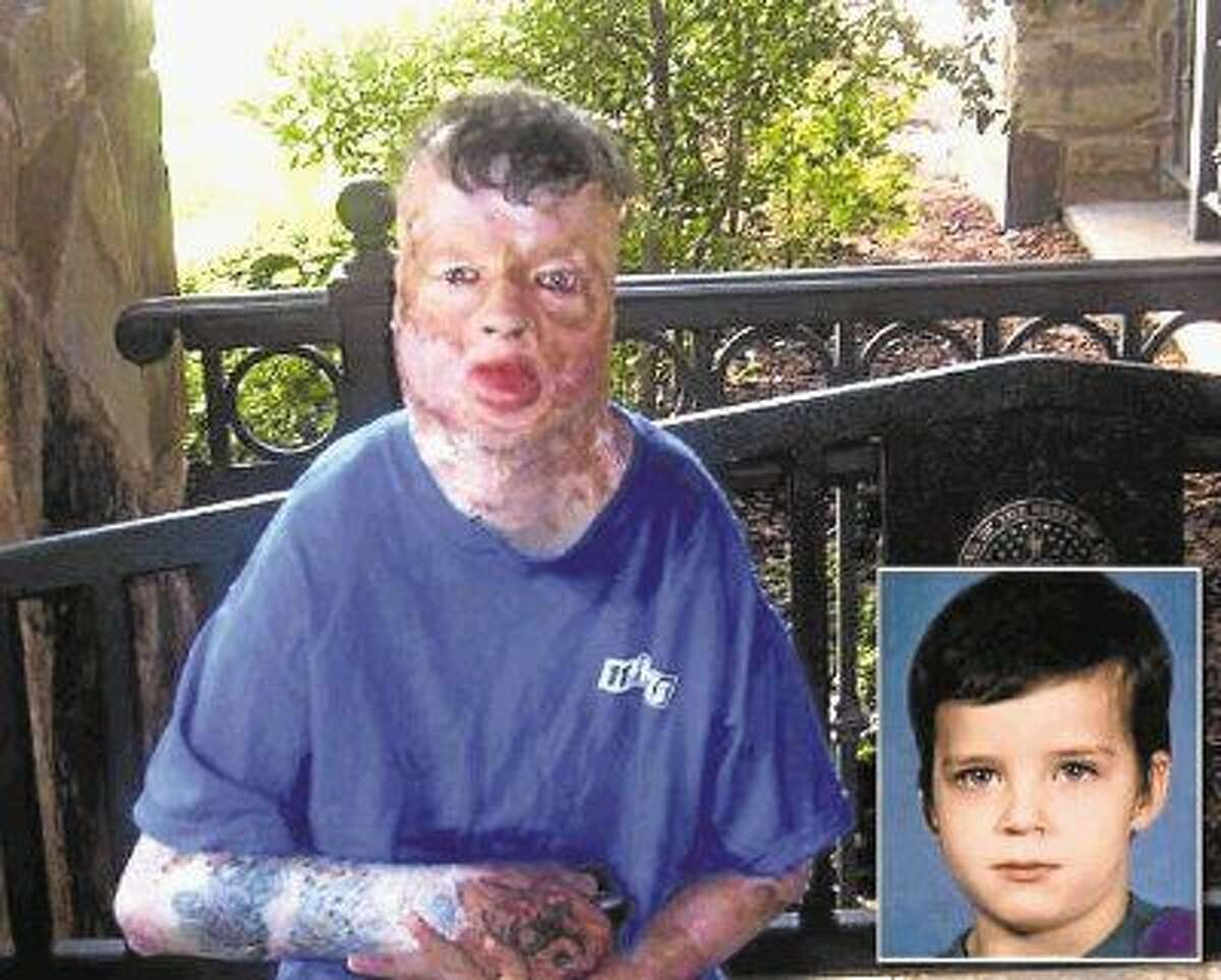 On Robert Middleton's 8th birthday, he was doused with gasoline and burned over 99 percent of his body. He died at the age of 21. Just before 6 p.m. Monday, jurors in the Don Collins capital murder trial found Collins guilty of burning Middleton.