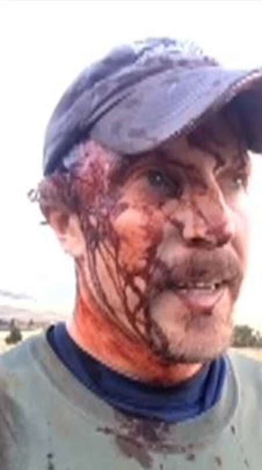 Todd Orr —  while still covered in grime and blood from what he says was a grizzly bear attack — got out his phone and recorded a detailed account of the encounter on Facebook Live.Keep clicking to see other normal, everyday people who went viral after Facebook Live videos. Photo: Screenshot