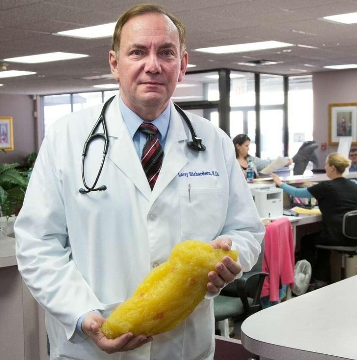 Dr. Larry Richardson, Founder of Doctor's Weight Control Center, holds five pounds of body fat and explains why women may experience weight loss difficulties.