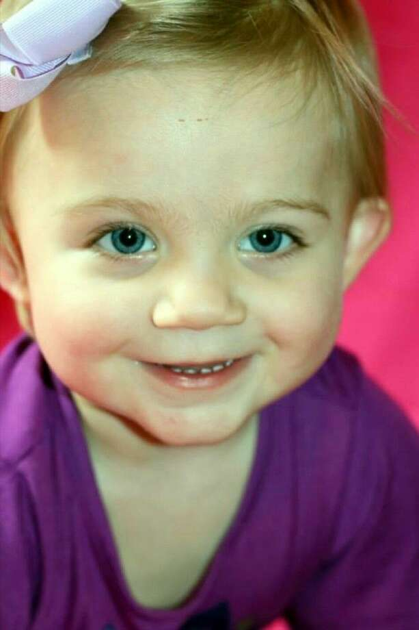 Two-year-old Brayleigh Kamerzink has a hereditary condition that causes her to have an atypical left club foot. The family is seeking help with medical expenses needed to correct the issue. Photo: Submitted Photo
