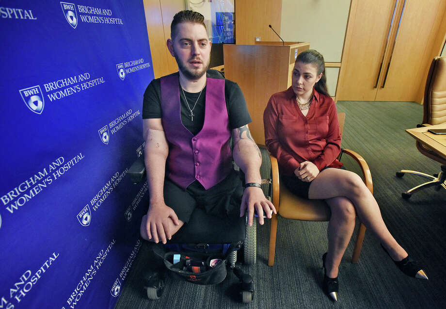 Retired Marine Sgt. John Peck, shown with his fiancee, Jessica Paker, said that after undergoing a double arm transplant, he is learning to dress himself, brush his teeth and feed himself all over again. He cooks and plans on becoming a chef. Photo: Patrick Whittemore, MBR / Patrick Whittemore/Boston Herald